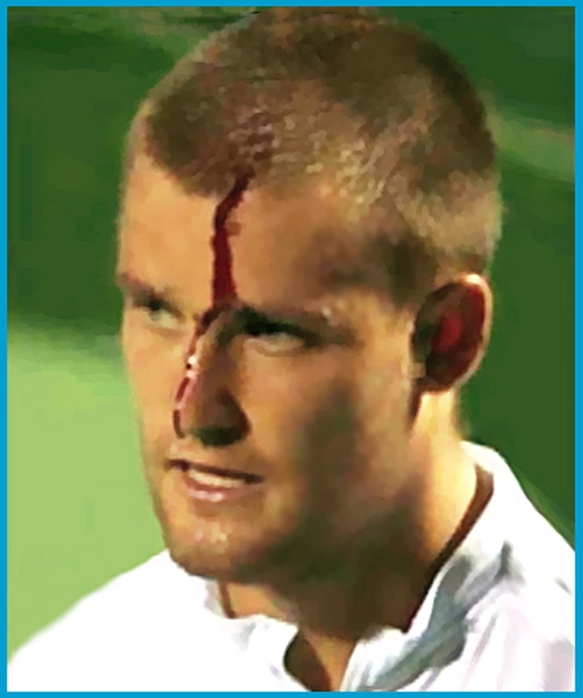 tennis i bleeding Mikhail Youzhny